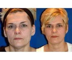 Hanna Facial Cosmetic Surgery