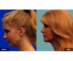 Hanna Facial Cosmetic Surgery | free-classifieds-usa.com