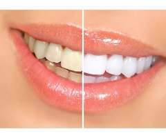 Tomalty Dental Care – Dentist in Florida - Cosmetic Dentistry