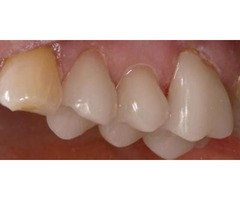 Top-Quality Same Day Crowns - Wainright & Wassel DDS