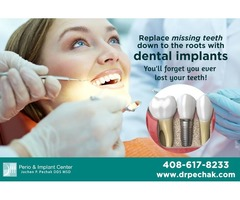 Cosmetic and Implant dentistry | Mini dental implants in Sunnyvale