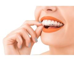 Invisalign Dentist – Dentist in Florida