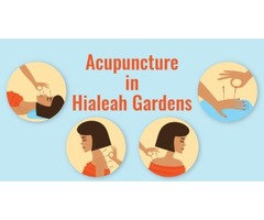 Acupuncture in Hialeah Gardens