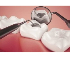 Find Dental Implant Surgery in San Antonio