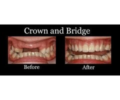 Cosmetic Dentistry New Braunfels Texas