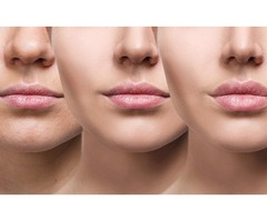 Get Best Lip Fillers in Richmond