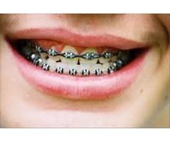 Oral and Maxillofacial Surgery Boise