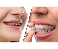 Orthodontist Coral Springs – Lakeview Dental Care