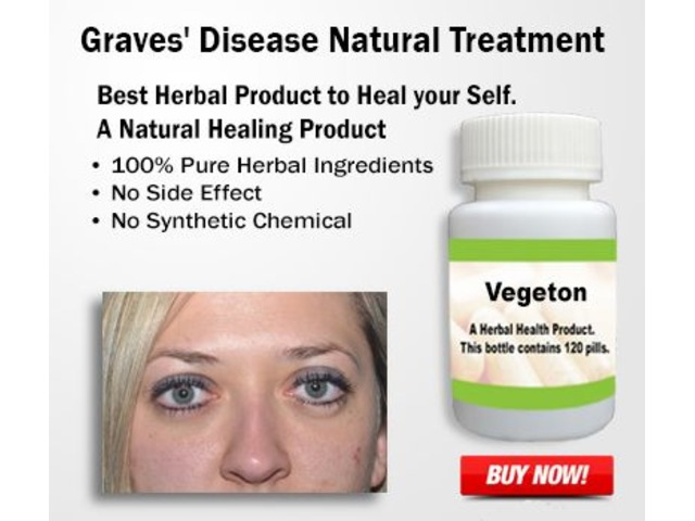 Natural Treatment for Graves' Disease | free-classifieds-usa.com