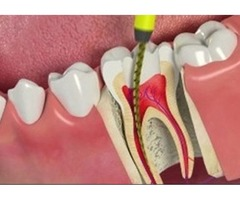 Root Canal Dentist Coral Springs - Lakeview Dental