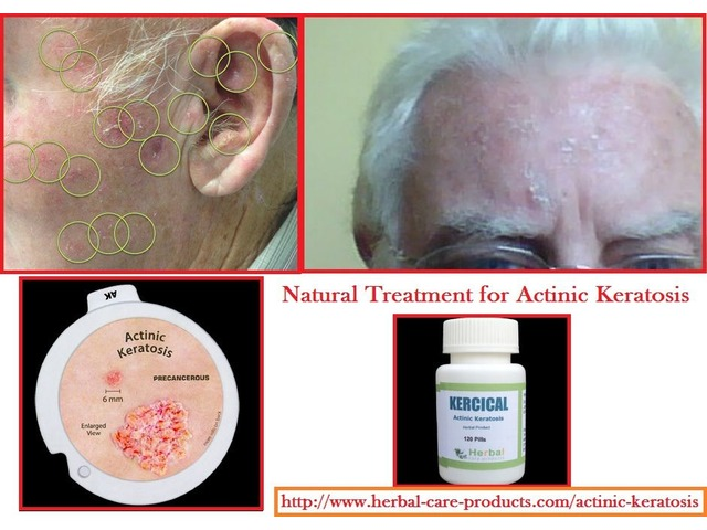 Actinic Keratosis Herbal Treatment | free-classifieds-usa.com