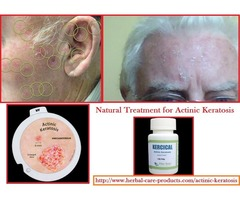 Actinic Keratosis Herbal Treatment