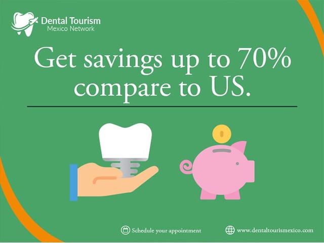 Mazatlan Dental Clinic Dental Crowns. | free-classifieds-usa.com