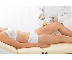 Laser hair removal in Beaumont, TX