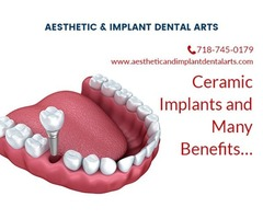 What are the benefits of ceramic implants?