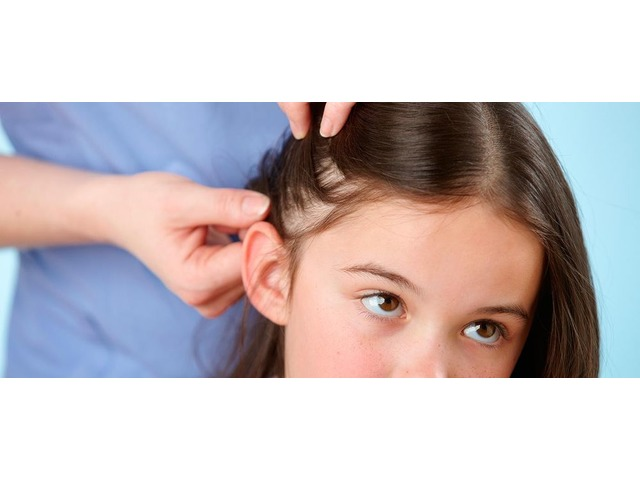 Lice Removal Services in  Thousand Oaks,CA | free-classifieds-usa.com