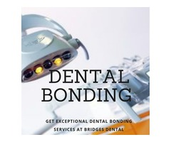 Dental Bonding Valrico Dentist to Get Best Bonding Services