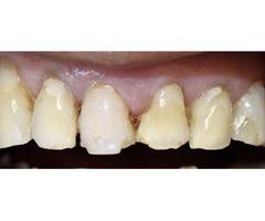 White Smile Beverly Hills   West Hollywood Dentist