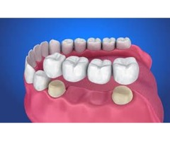 Exceptional Dental Bonding Services by Dental Bonding Valrico