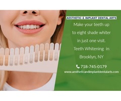 Choosing the Best Teeth Whitening Procedure