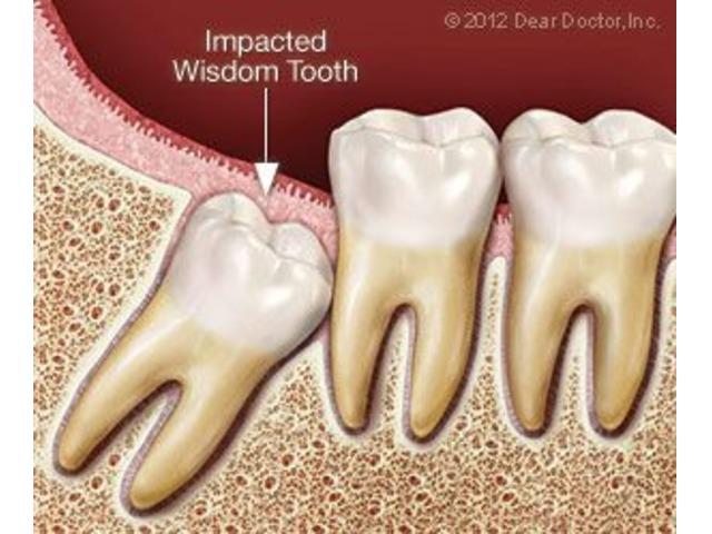 cosmetic teeth surgery inglewood | free-classifieds-usa.com