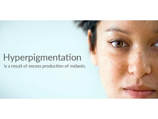 Best cream for acne hyperpigmentation | free-classifieds-usa.com