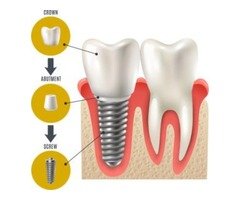 Get the best Dental Implant Treatment in Mission Hills