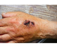 Unstable Wounds Treatment at Your Bedside