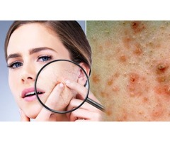 Best acne scars and treatment for you | Microdermabrasion Creams