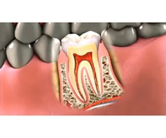 Root Canal Treatment in Long Island