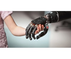 Reputed Robotic Prosthetic Limbs Companies