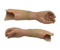 Advanced Michelangelo Hand Prosthesis