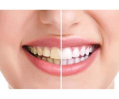 Professional Teeth Whitening Services in Mission Hills