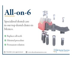 Full Mouth implants. Best Prices in Nuevo Vallarta