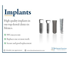 Dental Implants In Mexico, High-quality and Low cost, see our price list