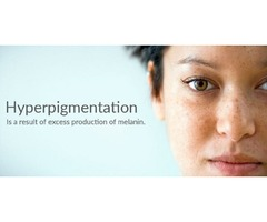 Best whitening cream for hyperpigmentation