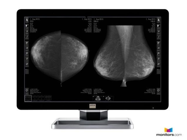 Refurbished Medical Diagnostic 10MP Barco Coronis Fusion Monitor | free-classifieds-usa.com