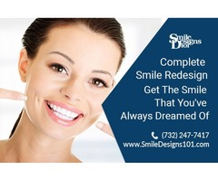 How to Get Complete Smile Redesign Treatment?