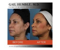 Thread Face Lift in San Francisco | Dr. Gain Humble