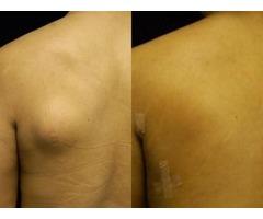 Best Fatty Mass Treatment At Home - Lipoma Wand