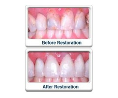 Are you looking for Dental Crown in Mission Hills?