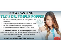 TLC's Dr. Pimple Popper now casting new patients!