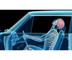 Get the Best Whiplash Medical Care in California