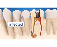 Best Dentists for Root Canal Procedure in Mission Hills