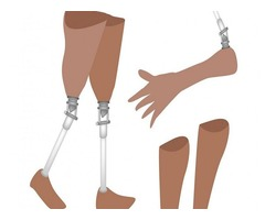 Most Comfortable Artificial Arms and Legs