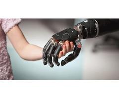 Most Advanced Robotic Prosthetics