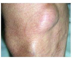 Lipoma Treatment - Lipoma Wand