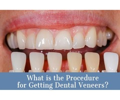 Get Affordable Dental Veneers Treatment in Mission Hills