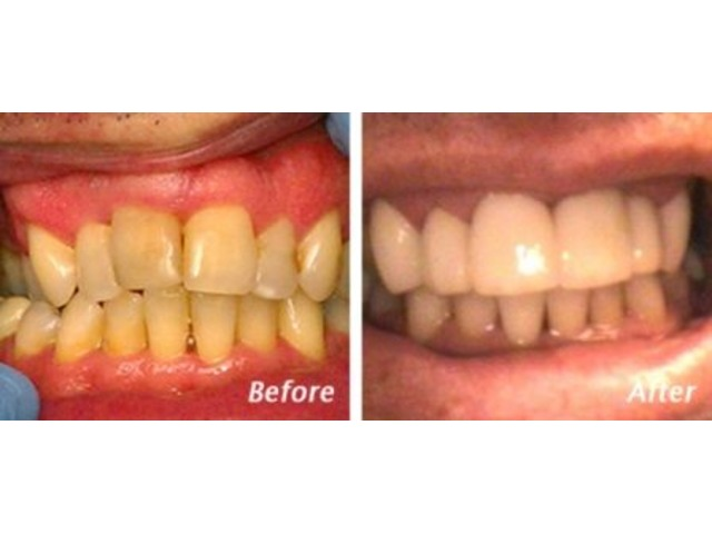 Find Cosmetic Dentistry Charleston SC- Dr. Andrew Greenberg - Local Dentist | free-classifieds-usa.com