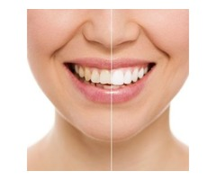 Affordable Teeth Whitening Charleston SC- Dr. Andrew Greenberg